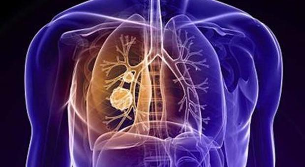 Nel 2050 l'immunoterapia sarà la cura per tutti i tumori