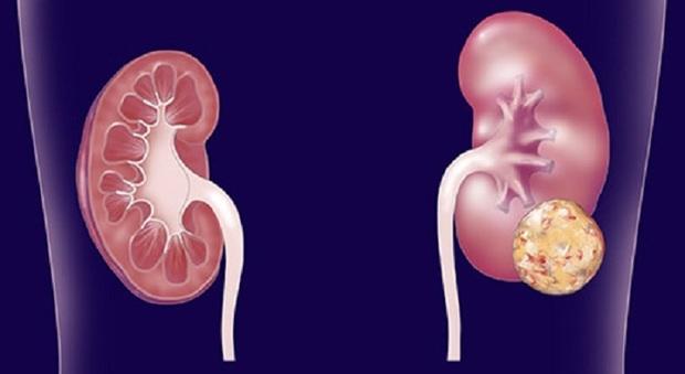 Nobel Medicina, immunoterapia batterà tumori entro 2050