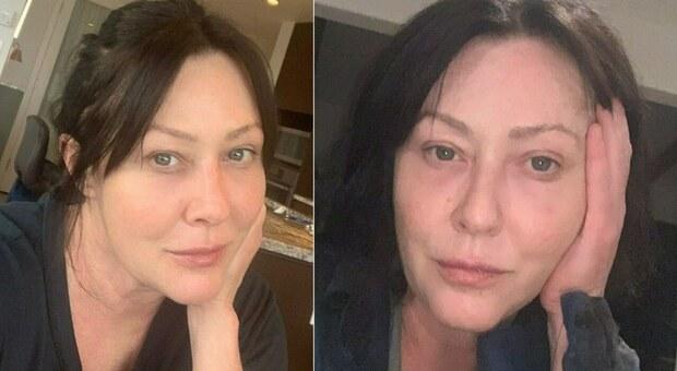 Shannen Doherty, l'attrice mostra il suo volto sui social: «Sono sopravvissuta al cancro»