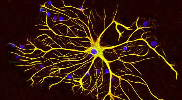 Sclerosi multipla, cellule chiave sane: bloccate da infiammazione. Svolta nella ricerca