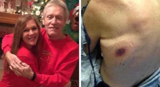 Batteri killer lo pungono in spiaggia, uomo muore per sepsi dopo agonia di 48 ore