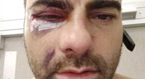 Massimiliano Idolo, il barman picchiato: «Io con il volto rovinato, e quei due pugili liberi»
