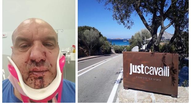 Porto Cervo, «Devo entrare in discoteca» e picchia un soccorritore del 118