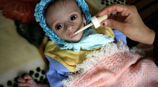 Yemen, 16 milioni di bambini e adulti ridotti alla fame: sos dalle Nazioni Unite
