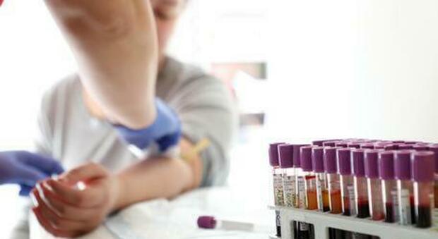 Covid, lo studio: «Chi ha il gruppo sanguigno A corre più rischi»