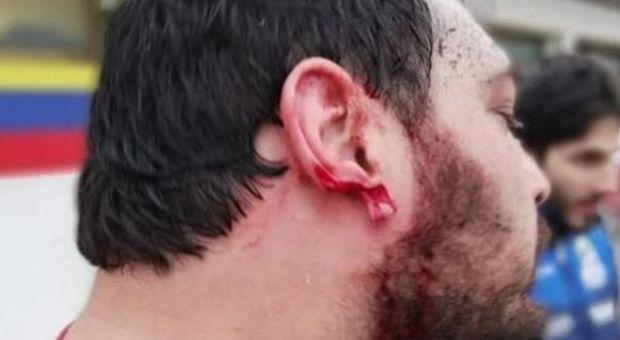 Rugby, orecchio staccato con un morso durante una mischia: 25enne condannato