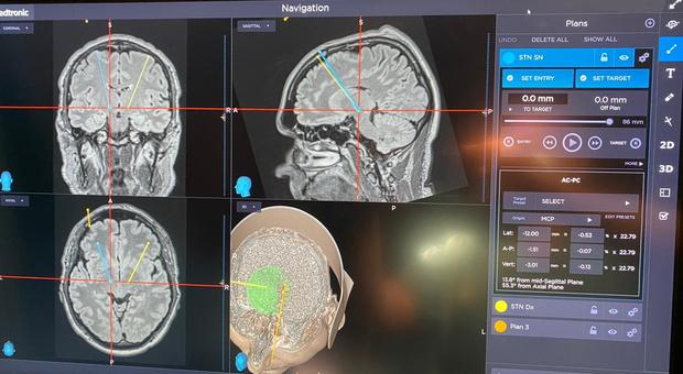 Tumori, trovati i percorsi nascosti nella mappa delle mutazioni: «Ora terapie più efficaci»
