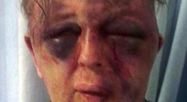 Arancia meccanica a Londra, professore massacrato di botte in casa da rapinatori