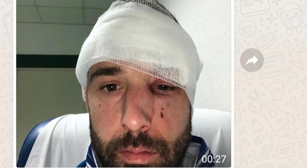 Portiere steso in campo con un pugno dall'avversario: naso fratturato