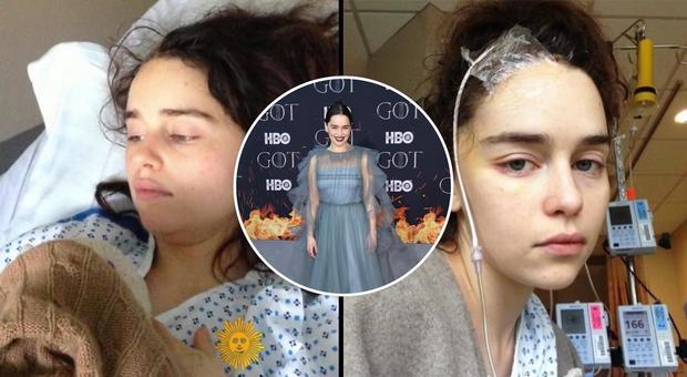 Emilia Clarke, le foto choc della star di Game of Thrones dopo i due aneurismi