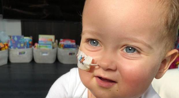 Il piccolo Alex operato a Roma, speranza per il bimbo