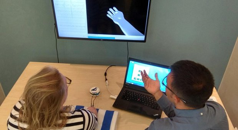 Su una donna svedese impiantato il primo robot per controllo della mano artificiale