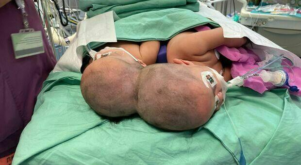 Gemelle siamesi di un anno separate grazie a una lunga operazione si guardano per la prima volta