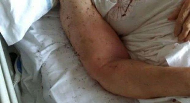 Napoli choc: paziente a letto in ospedale tra le formiche