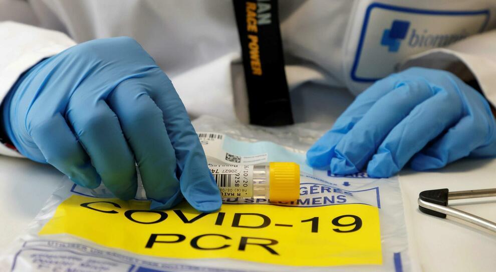Vaccino Covid, i medici di Washington: «Trovato uno 10 volte più forte, non ha bisogno di essere congelato»