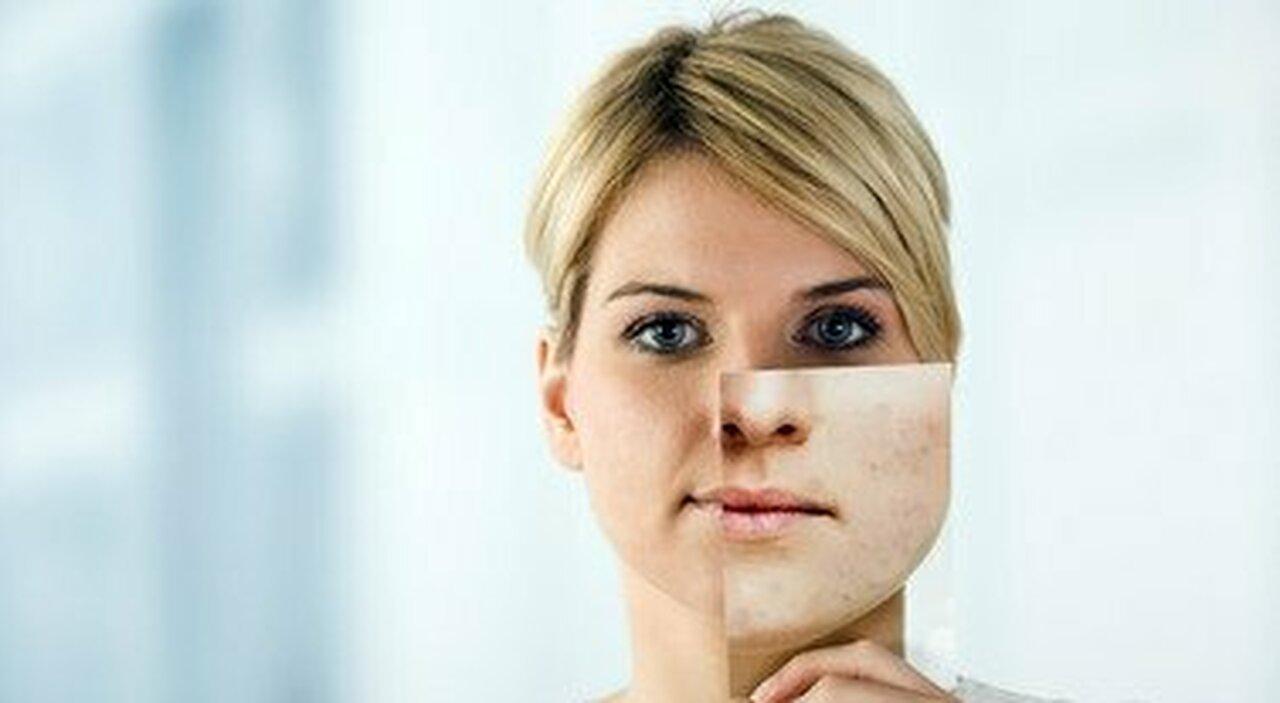 Acne e da mascherina, cause e come combatterla: le 5 regole dell'esperto