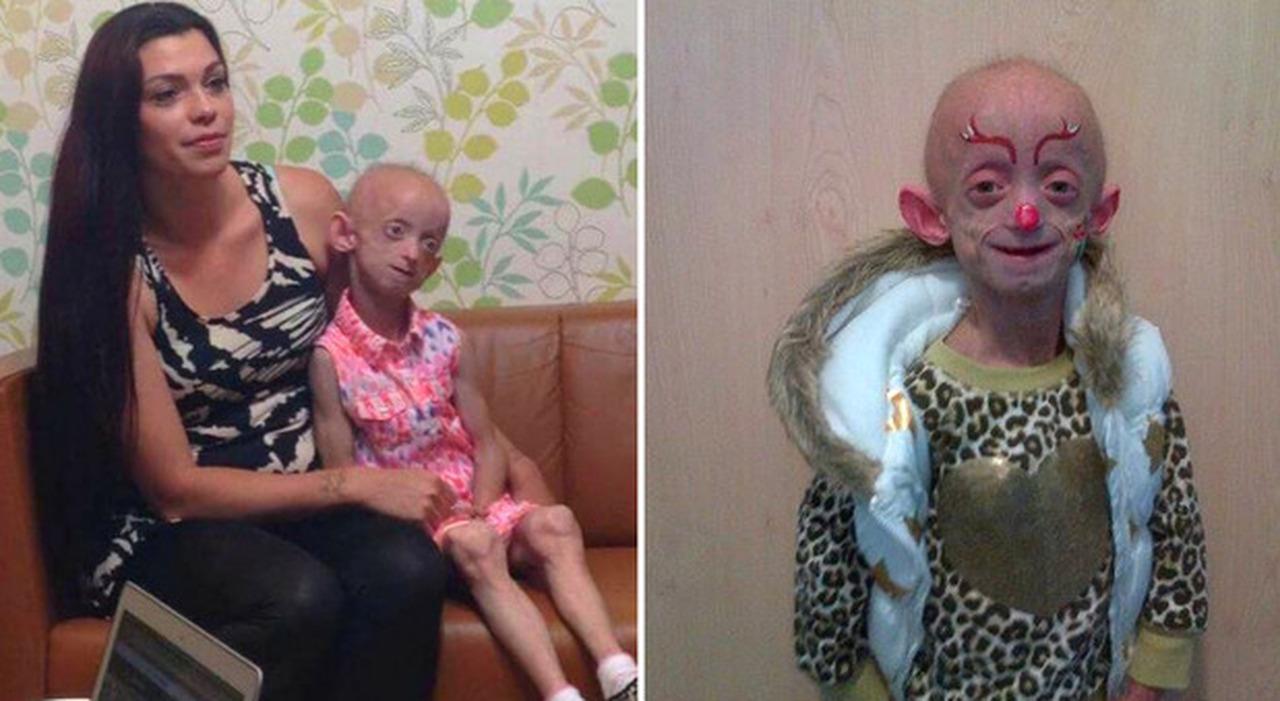 """Malattia Benjamin Button, muore ragazza di 18 anni """"invecchiata"""" sino a 144. «Mamma, lasciami andare»"""