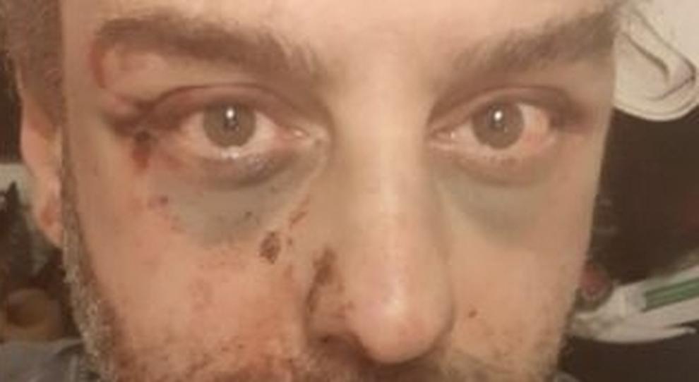 Aggressione omofoba, pestato a Trieste un attivista pescarese