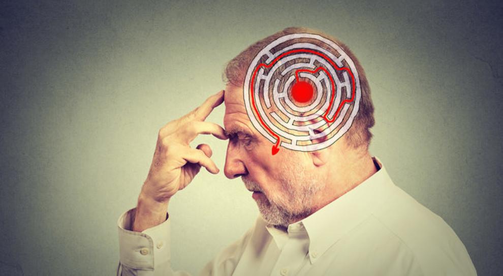 Alzheimer Scoperto Lo Spazzino Molecolare Che Potrebbe Fermare La Malattia