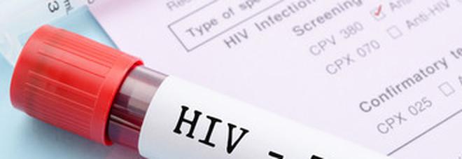 Aids, crescono le donne sieropositive infettate dai mariti
