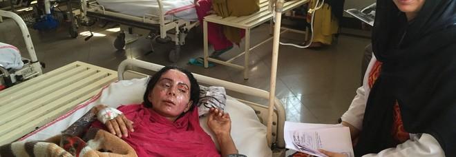 Un medico italiano ha ridato un volto a 200 donne sfigurate con l'acido dal proprio marito
