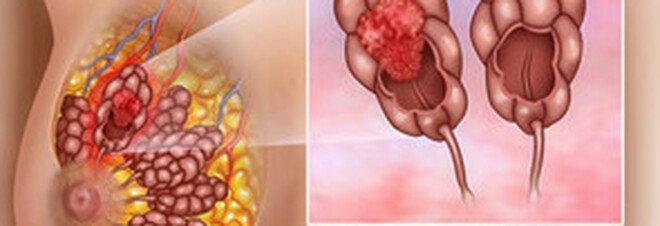 Crescono le speranze di vita per il cancro al seno metastatico grazie a nuovi farmaci