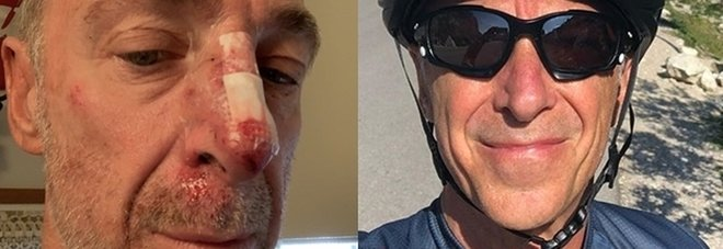 Milano, Linus cade dalla bici a causa di una radice