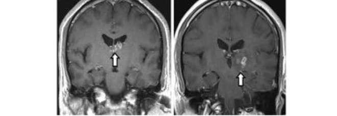 Ha mal di testa e convulsioni: i medici scoprono che ha un verme di 10 cm nel cervello